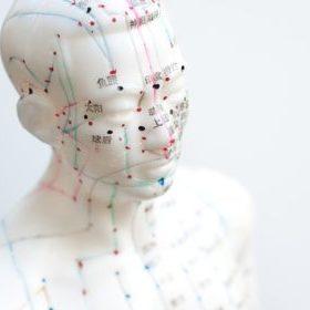 Faltenakupunktur